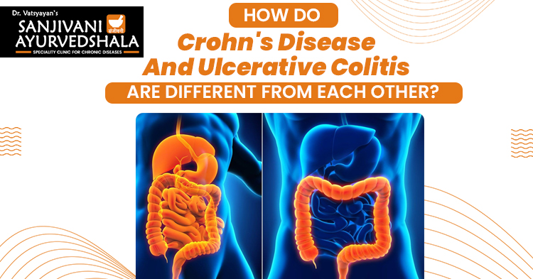 How do Crohn's disease and Ulcerative colitis are different from each other?