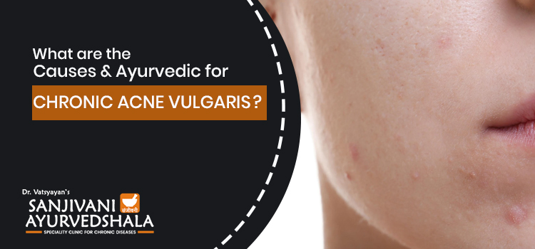 What are the causes and ayurvedic treatment for chronic acne vulgaris?