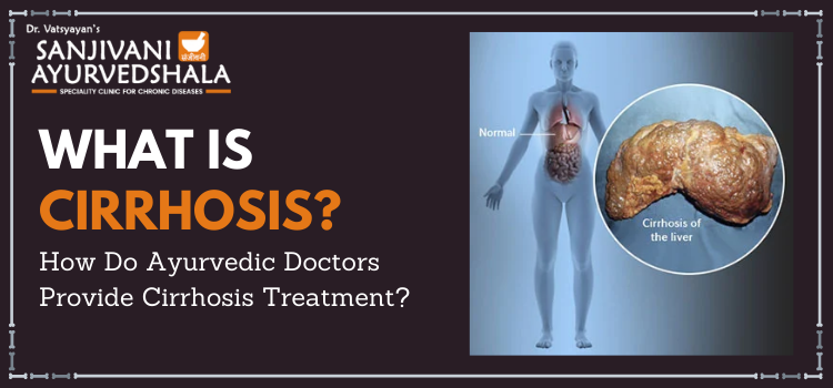 What is Cirrhosis? How do Ayurvedic doctors provide cirrhosis treatment?